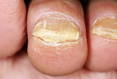Nail Psoriasis Can Affect The Fingernails And Toenails