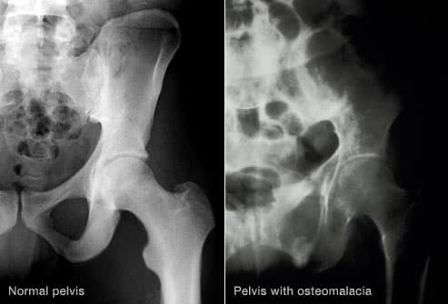 xray of pelvis with osteomalacia
