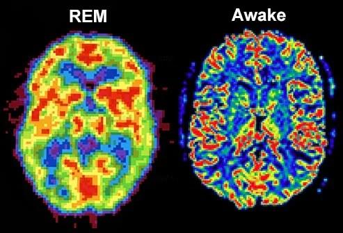 rem brain vs awake brain