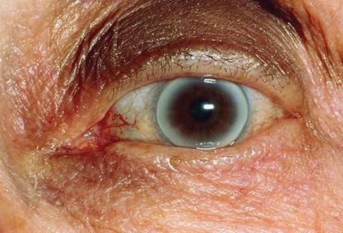 corneal arcus close up