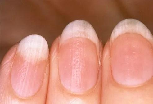fingernail pitting from psoriasis