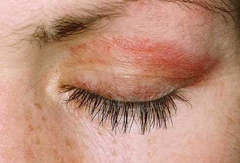 thyroid dermatomyositis on eyelid