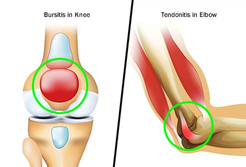 bursitis and tendonitis diptych