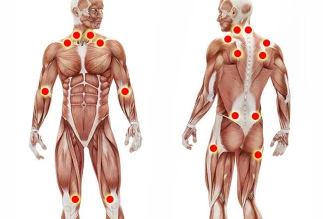 fibromyalgia pain points illustration