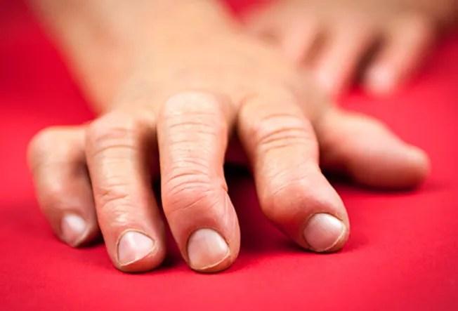 hand displaying rheumatoid arthritis