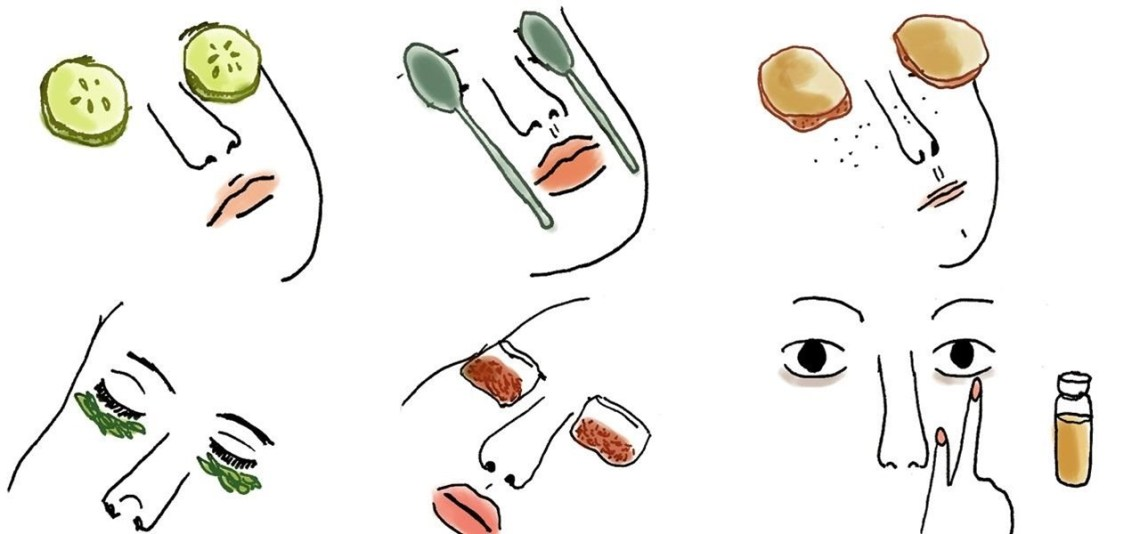 How To : 8 Home Remedies That'll Get Rid of Those Dark Circles Under ...