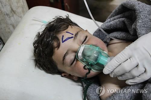 """""""시리아 공습 피해자 '신경작용제' 증상…화학무기 가능성 높아"""""""