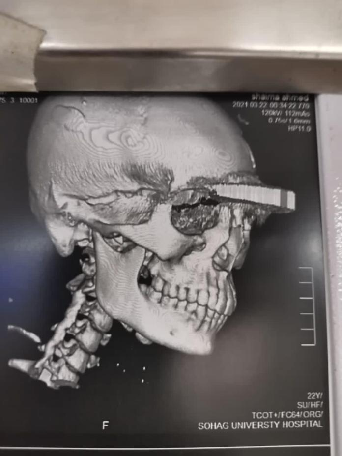 A medical team at Sohag University Hospital succeeds in extracting a cleaver from a lady's forehead (2)