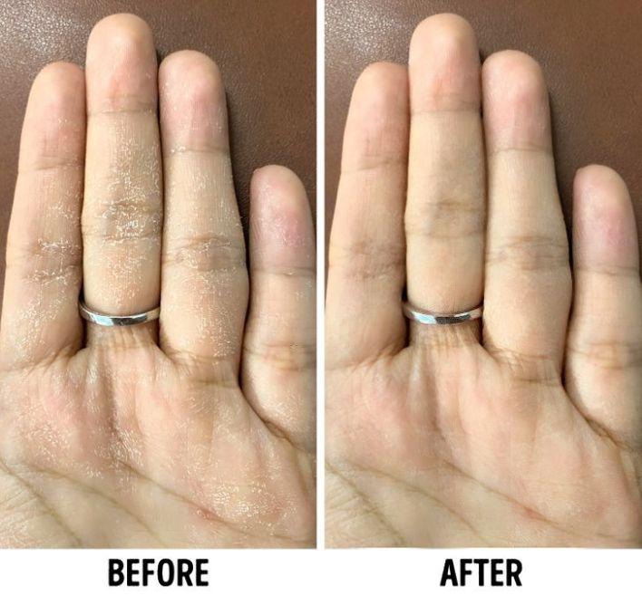 أستخدمى مرطب اليدين