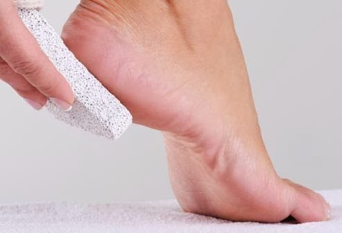 العناية بالبشرة - حجر القدم