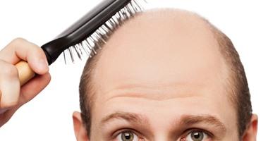 علماء يتوصلون إلى أسباب تساقط الشعر عند الرجال وراثيًا