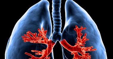 اختبار دم بسيط يظهر سرطان الرئة قبل ظهوره بالأشعة بـ5 سنوات
