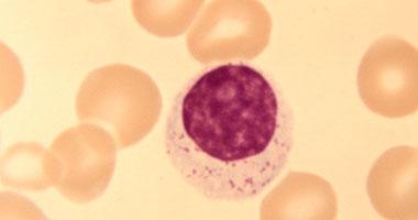 ما علاج زيادة معدل الحديد فى الدم اليوم السابع