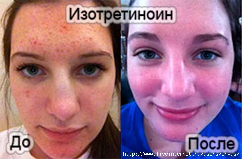 https://i1.wp.com/img0.liveinternet.ru/images/attach/c/7/124/794/124794478_4907394_izotretinoin320x320.jpg