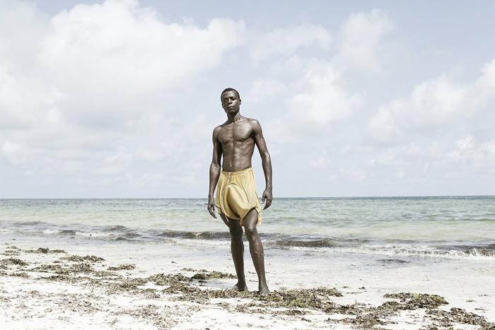 Пенис африканца увеличился до 90 сантиметров из за болезни. Врачам пришлось сделать две операции