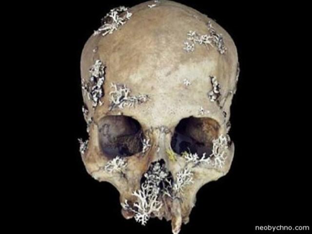10 самых необычных лекарств из… мертвых людей