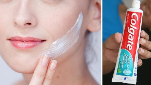 Средство от прыщей, угрей и дефектов: нанесите зубную пасту на кожу и увидите волшебство!
