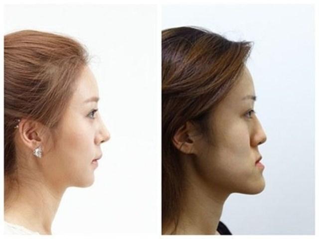 Чудесное преображение корейских девушек близняшек