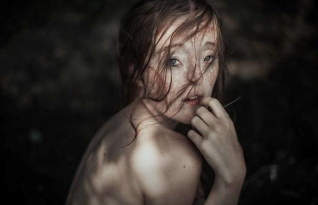 Девушка с дефектом лица стала успешной моделью