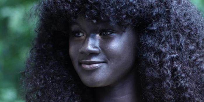 8 очаровательных людей с уникальным цветом кожи