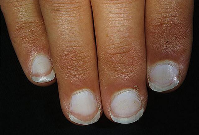 vita prickar på naglarna