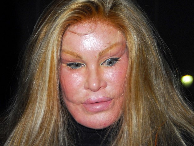 Знаменитые жертвы пластической хирургии: шокирующие фото, как говорится…
