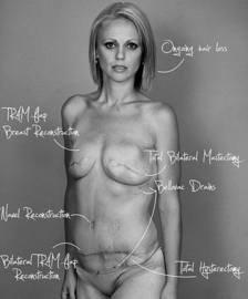 Una mujer desafía al cáncer mostrando el rastro que ha dejado sobre su cuerpo