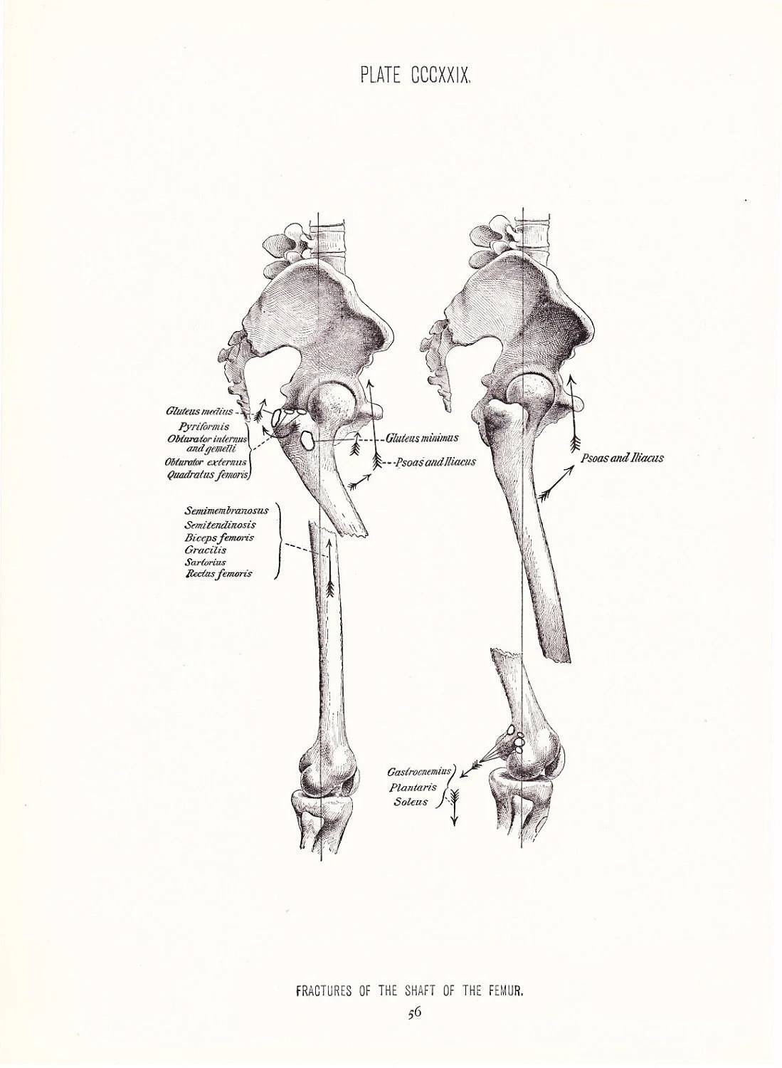 Broken Leg Diagram