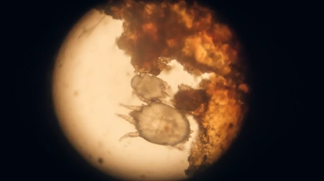scabies under microscope
