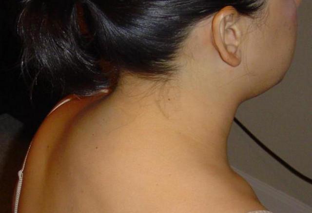 Соляной горб на шее как избавиться