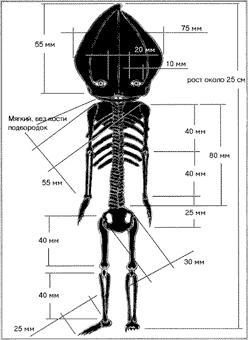 Кыштымский карлик— существо, которое нашли в Челябинской области