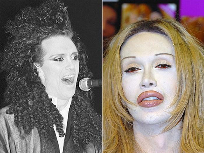 Какие знаменитости погибли после пластической хирургии