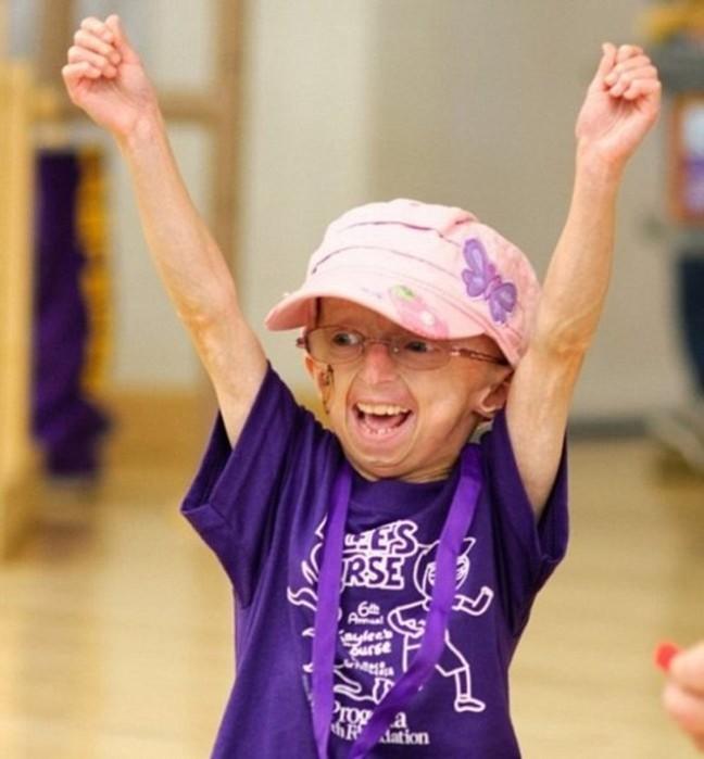 Кайли Халко: девочка старушка, которая лечит артрит хип хопом
