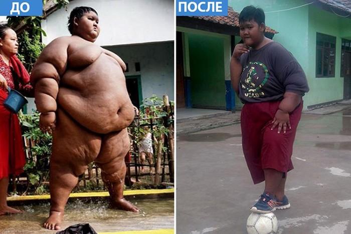 Самый толстый мальчик в мире решился на похудение и сбросил 83 килограмма