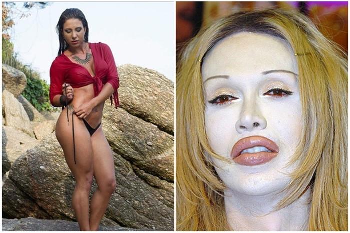 Эти девушки хотели стать красивее, но умерли после пластической операции