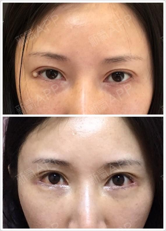 開外眼角好不好_效果圖_氧氣Dpoac2002開外眼角術后第9天_新氧美容整形