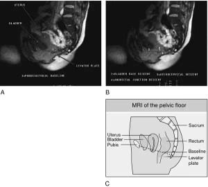 Frozen pelvis   definition of frozen pelvis by Medical