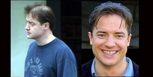 noticias Descubre que famosos lleva implante de pelo