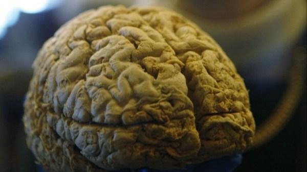 Найден редкий и опасный тип рассеянного склероза | Новости ...