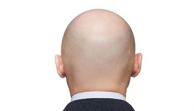 Androgenetic Alopecia Many men and women suffer from androgenetic alopecia, which is most common due to genetic factors and changing hormone levels.