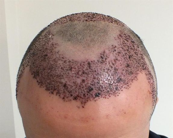 Hair transplantation Hair transplantation is a permanent solution by transferring a small patch of skin containing 1-15 hairs from the areas of the scalp where hair grows in a lot