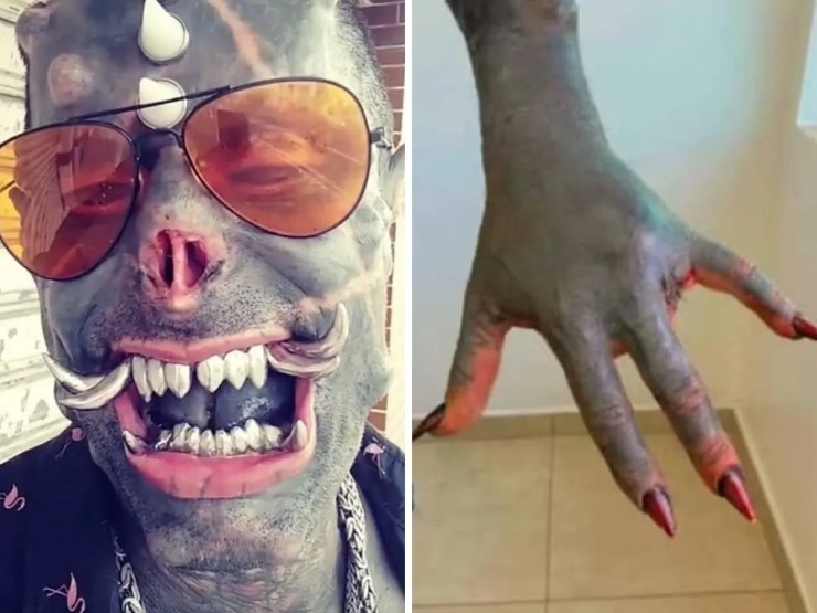 Body modification addict removes two fingers adds two tusks | Body  modification addict cuts off two fingers, adds two silver tusks to his  teeth | Trending & Viral News