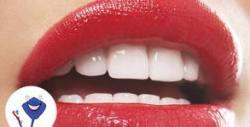 Почистване на зъбен камък или фотополимерна пломба, плюс преглед и план за лечение