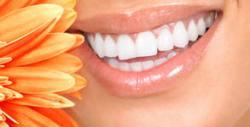 Кабинетно избелване на зъби, плюс почистване на зъбен камък с ултразвук или изработване на шини за поддръжка на цвета