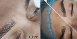 Микроблейдинг на вежди, плюс ретуш и консултация