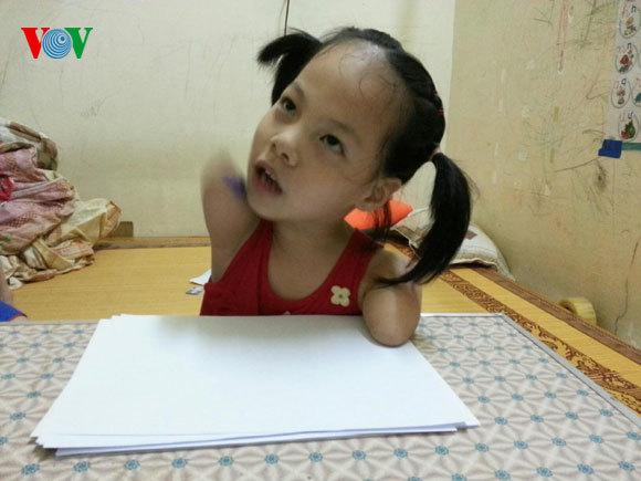 Linh Chi, cô bé không tay chân