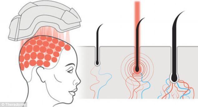 hói đầu, mũ bảo hiểm, dùng thuốc, phát minh, sáng chế