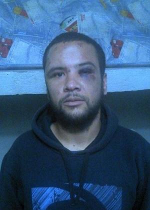 1.jul.2014 - O professor de História André Luiz Ribeiro, de 27 anos, foi espancado por moradores do bairro Balneário São José, em São Paulo, após ser confundido com um ladrão