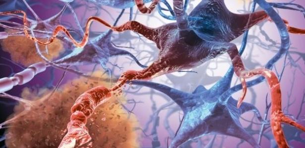 Representação da quebra de conexão entre células cerebrais como acontece em pacientes com Alzheimer