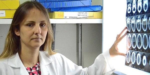 neuropediatra vanessa van der linden a primeira a notificar a relacao entre o aumento nos casos de microcefalia e o virus no estado 1456506156836 615x300 - Não é só microcefalia: bebês de PE têm irritação, epilepsia e rara atrofia